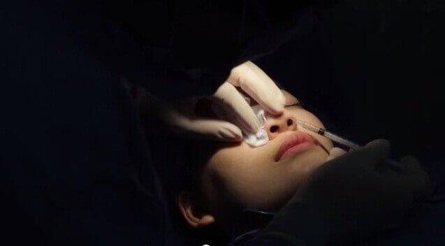 giải phẫu thẩm mỹ mũi