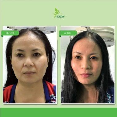 Căng Da Mặt Chỉ Collagen Lifting 4D
