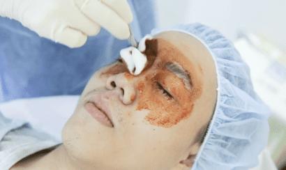 Sát khuẩn vùng mí mắt